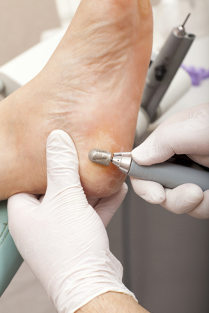 Simply Foot Care, Chiropody and Podiatry in Dursley Gloucestershire
